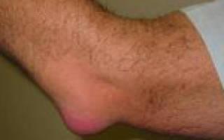 Бурсит локтевого сустава причины симптомы диагностика и лечение