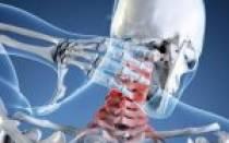 Остеохондроз 2 степени шейного отдела причины и последствия лечение и реабилитация