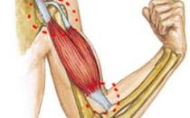 Разрыв сухожилия двуглавой мышцы (бицепса) плеча